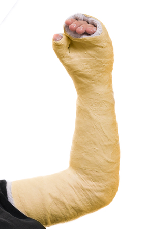 Close up of a young mans yellow long arm plaster  fiberglass cast covering the wrist, arm, and elbow after an accident, isolated on white Stock Photo