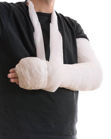 fibra de vidrio: yeso de brazo - de color blanco brillante elenco largo brazo en un cabestrillo para un roto el codo, el brazo o la muñeca. El brazo cubierto de yeso  yeso  fibra de vidrio. Aislado en blanco. Foto de archivo