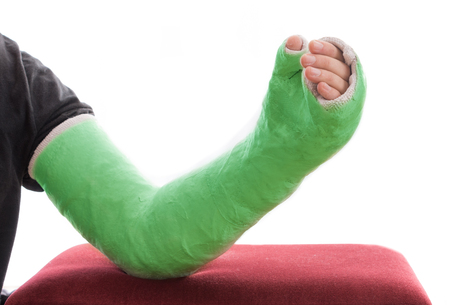 A green long arm plaster  fiberglass cast covering the wrist, arm, and elbow, resting on an ottoman, isolated on white Stock Photo