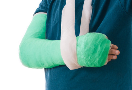 Arm cast - bright green long arm cast in a sling for a broken elbow, arm, or wrist.  Arm covered in  plaster  gypsum  fiberglass.  Isolated on white.