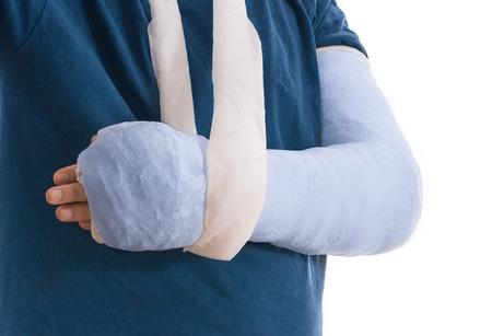 fibra de vidrio: yeso de brazo - azul brillante tono azul brazo en cabestrillo para un roto el codo, el brazo o la muñeca. El brazo cubierto de yeso  yeso  fibra de vidrio. Aislado en blanco.