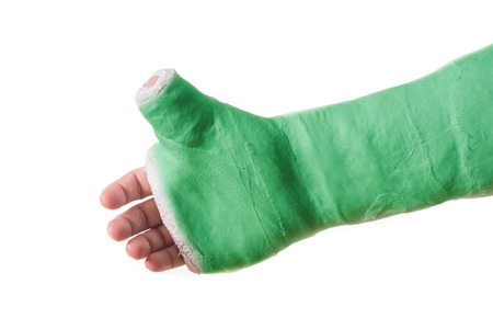 Close up of a green arm plaster  fiberglass cast  with the thumb extended in a thumbs-up shape, isolated on white