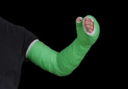 Close up of a green long arm plaster  fiberglass cast covering the wrist, arm, and elbow after a n accident, isolated on black