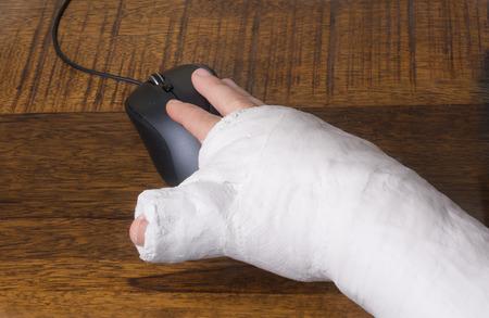 Una persona que llevaba un yeso de brazo después de romper su muñeca que tiene dificultades para utilizar un ratón de ordenador Foto de archivo