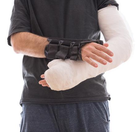 splint: Hombre joven con blanco brazo largo de yeso  fibra de vidrio emitidos en un brazo y una férula de muñeca y el pulgar en el otro, después de un accidente, aislado en blanco Foto de archivo