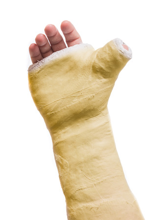 Close up of a yellow arm plaster  fiberglass cast  with the thumb extended in a thumbs-up shape, isolated on white