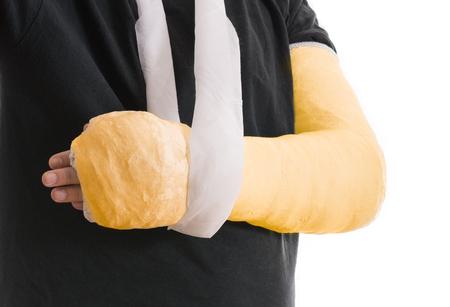 fibra de vidrio: yeso de brazo - de color amarillo brillante elenco largo brazo en un cabestrillo para un roto el codo, el brazo o la muñeca. El brazo cubierto de yeso  yeso  fibra de vidrio. Aislado en blanco. Foto de archivo
