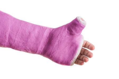 fibra de vidrio: Cerca de un brazo de yeso de color rosa  fibra de vidrio fundido con el pulgar extendido en forma de pulgar hacia arriba, aislado en blanco