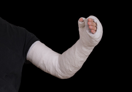 fibra de vidrio: Primer plano de blanco largo brazo de yeso  fibra de vidrio de un hombre joven reparto que cubre la muñeca, el brazo y el codo después de un accidente de patinaje, aislado en negro Foto de archivo