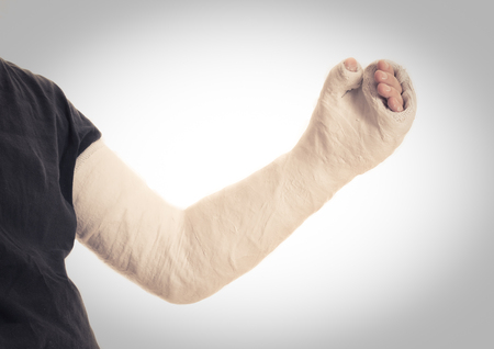 spica: Close up of a young mans white long arm plaster  fiberglass cast covering the wrist, arm, and elbow after a skating accident, vintage retro effect Stock Photo