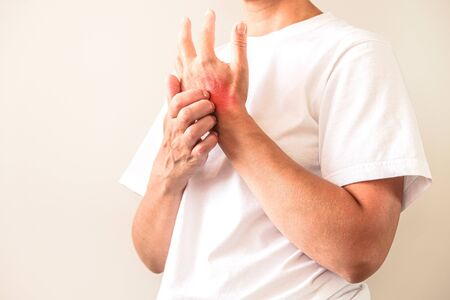 Woman Scratching an itch . Sensitive Skin, Food allergy symptoms, Irritation Reklamní fotografie