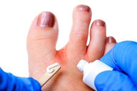 Medical pedicure. Foot hygiene. Fungus treatment. Spa skin care Zdjęcie Seryjne