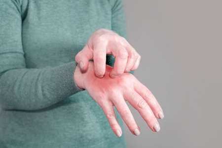 The girl in the gray jumper scratches her hand. Scabies. Inflammation of the skin. Disease of the skin on the hand, the manifestation of dermatitis.