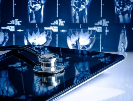 medicinsk stetoskop på modern digital tablett i laboratorium på röntgenbilder bakgrund. Begreppet hälso- och sjukvård med ny teknik
