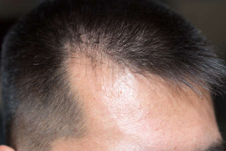 front side: Male head with hair loss symptoms front side