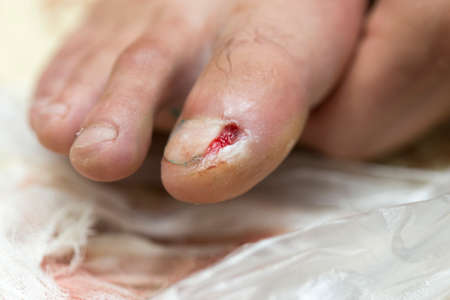 treatment of a wound on the leg, a nail grew inside done a mini operation