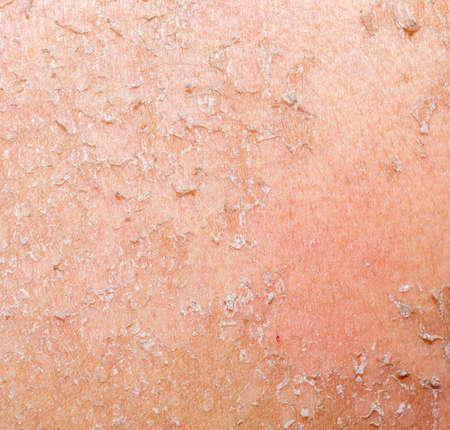 burned skin macro Stock Photo