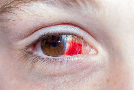 hematoma in the eyes of macro Stock Photo