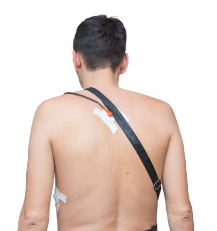 A man wears a Holter device, a device for daily ECG monitoring. Treatment of heart defects Stockfoto