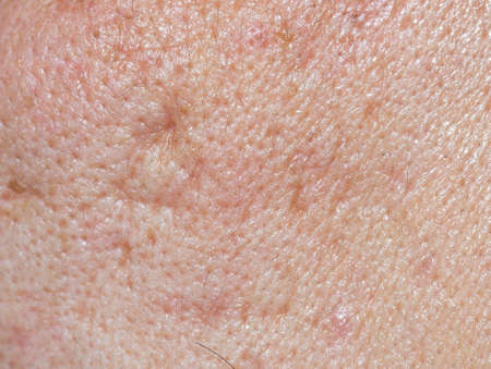 Acne skin on face woman,problem skin. macro