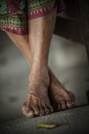 underdeveloped: Feet of senior woman