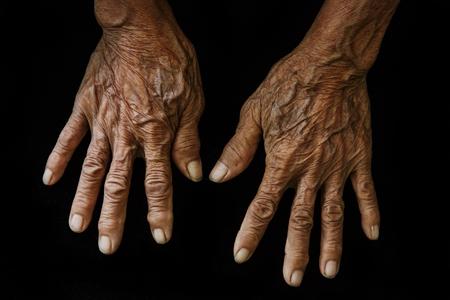 wrinkled: Old hands on a black background