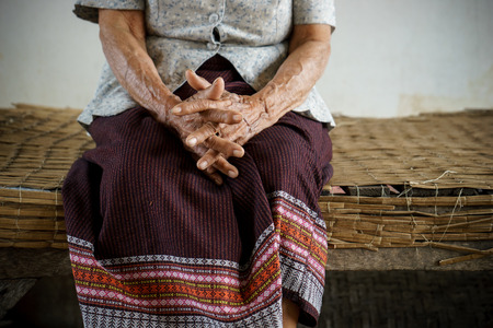 underdeveloped: Hands of senior woman Stock Photo