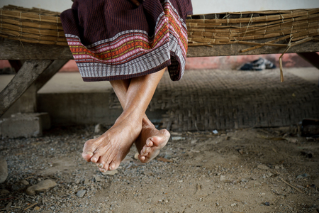 underdeveloped: Feet of Asian Grandmother or mother