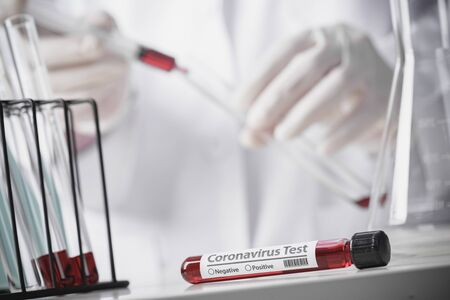 Testing patients blood samples for Coronavirus Outbreak (COVID-19) in the laboratory, New coronavirus 2019-nCoV from concept