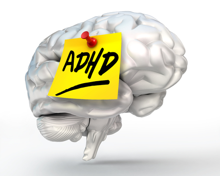 adhd yellow note on brain conceptual image, clipping path included photo