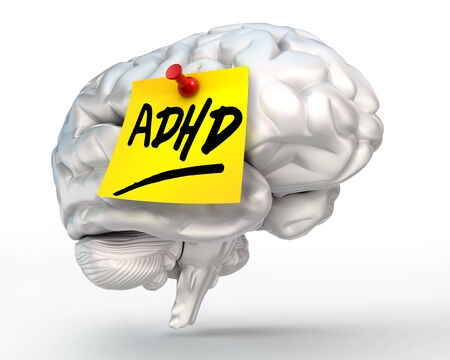 adhd: adhd yellow note on brain conceptual image, clipping path included Stock Photo