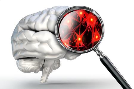 enfermedades mentales: neuronas de cerca en la lupa y el cerebro humano en el fondo blanco Foto de archivo