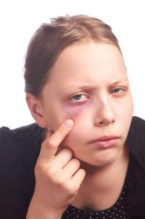 Teen girl with a problem skin, studio shot photo