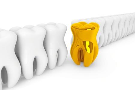 decayed teeth: Estomatolog�a concepto. Primer extremo diente de oro sobre un fondo blanco