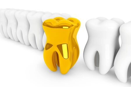 carious: Stomatology concept. Extreme closeup gold tooth on a white background