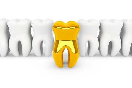 dental implants: Stomatology concept. Extreme closeup gold tooth on a white background