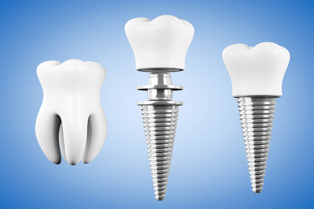 dental impression: Stomatology concept. Tooth Implant with Tooth on a blue background
