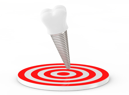 implantation: Stomatology concept. Tooth Implant over Target on a white background. 3d Rendering