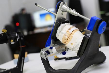 Protesi gettato in gesso per il dentista