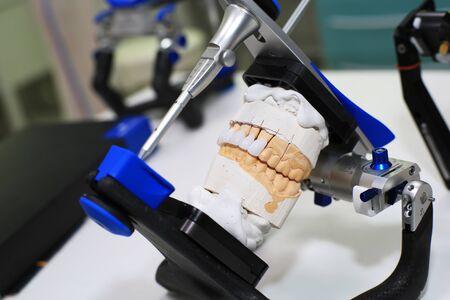 Getto per protesi in gesso per il dentista