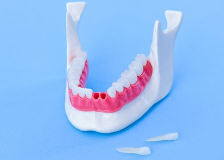 Teeth implant and crown installation process isolated on a blue background. Medically accurate 3D illustration