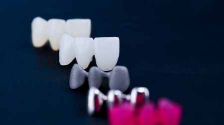 different types of dental tooth crowns isolated on blue background 免版税图像