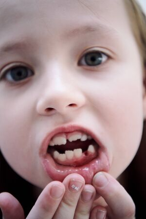 Funny little girl without tooth smiles showing gap close up