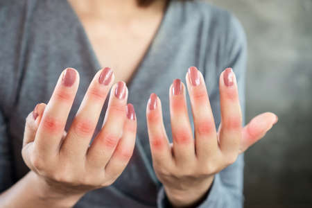 Asian female patient showing hand and fingers problem of gout, joint pain Stockfoto