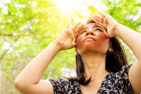 Asian woman having problem sunburn ,melasma, freckles on skin, hand cover her face to protect UV sunlight Standard-Bild