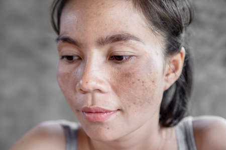 closeup Asian woman face having skin problem with dark spot, freckle from uv light Banque d'images