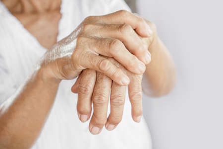 female patient showing hand and fingers problem of gout, joint pain