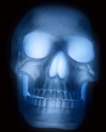 fake X-ray of skull Stock Photo