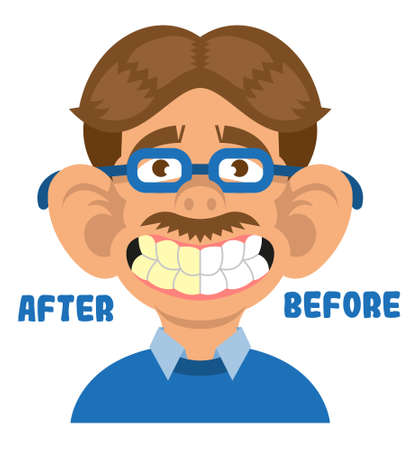 Man show mouth with great teeth before and after care cleaning treatment and whitening. Healthy smile Vector modern flat style cartoon character illustration isolated white background dentist concept.