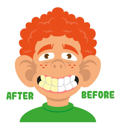 Young boy show mouth with great teeth before and after care cleaning treatment and whitening. Healthy smile. Vector modern flat style cartoon character illustration white background dentist concept.  イラスト・ベクター素材